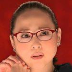 松田聖子の顔は整形でぱんぱんで不自然になった?しわや腫れもヤバイ!